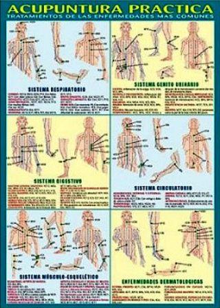 lamina-acupuntura-practica